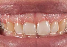 Odontologia Estética