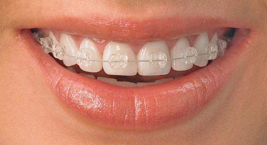 Ortodontia e Ortopedia Facial dos Maxilares